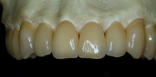Upper IPS e.max / zirconium crowns