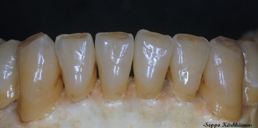 lower IPS e.max crowns