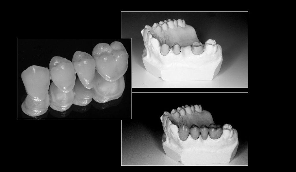 Keraaminen hammassilta
