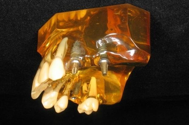 Keinojuuret ja implanttijatkeet paikoillaan leukaluussa